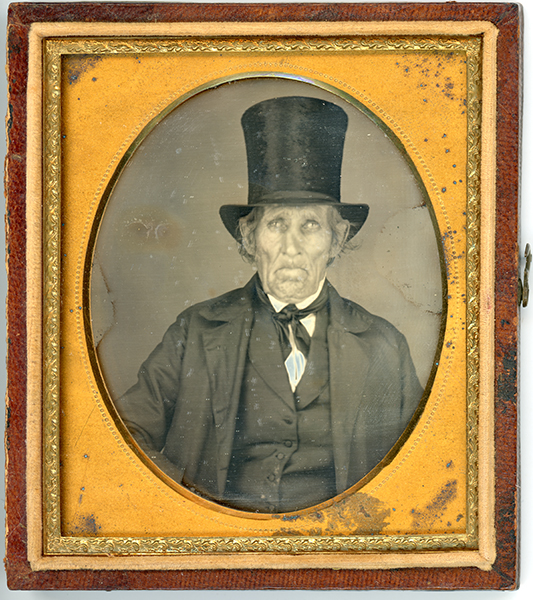 Daguerreotype of man with a broken nose